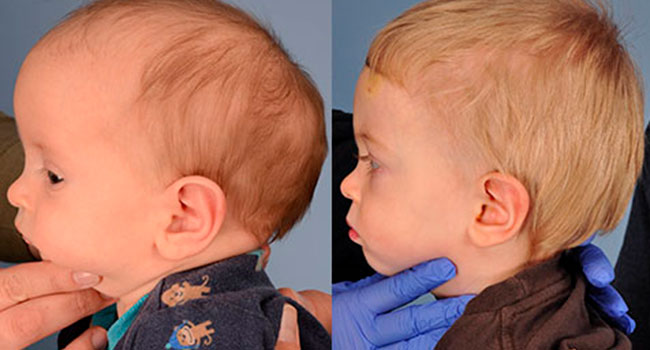 Virtual tools help surgeons correct skull defects in babies
